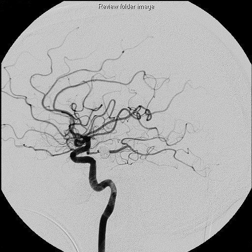 angiogram of a coiled aneurysm