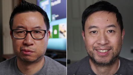 Harlan Yee before and after surgery