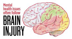 Brain injury graphic
