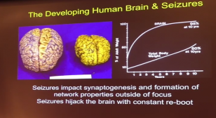 Slide from Dr. Mathern's lecture of pediatric epilepsy surgery