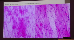 Slide from Dr. Scherpelz' lecture on glioma diagnosis